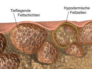 Usuwanie cellulitu - Przekrój skóry